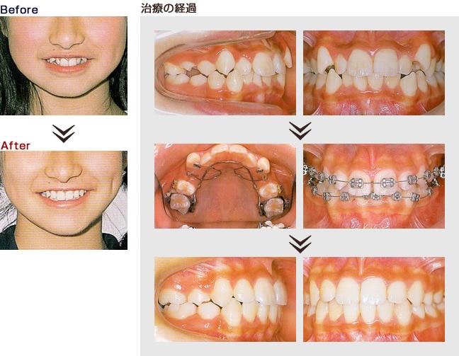 歯 列 矯正 ビフォー アフター